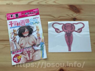 子宮断面図ボディシール